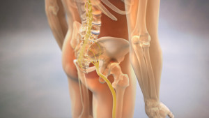 Chiropractic treatment of sciatica